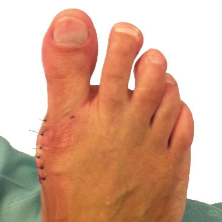 Hallux valgus Operation - Fuss mit Operationsnaht